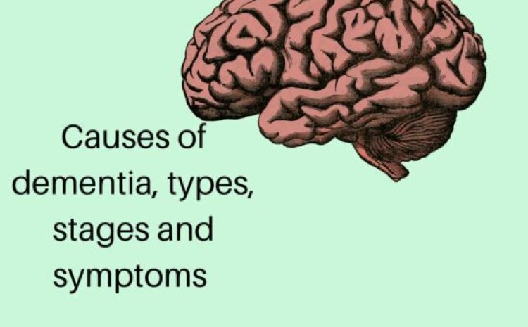 Causes of dementia : types, stages and symptoms