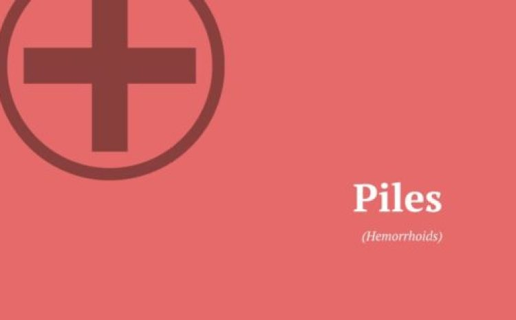 Piles (Haemorrhoids) – Symptoms, Causes, Prevention & Treatments