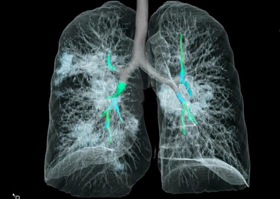 Coronavirus_nCoV-2019_3D_Chest_CT_41-YO_patient_Radiology