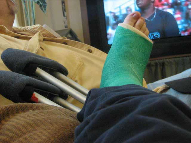 green cast on leg, State Farm Claims accident attorney