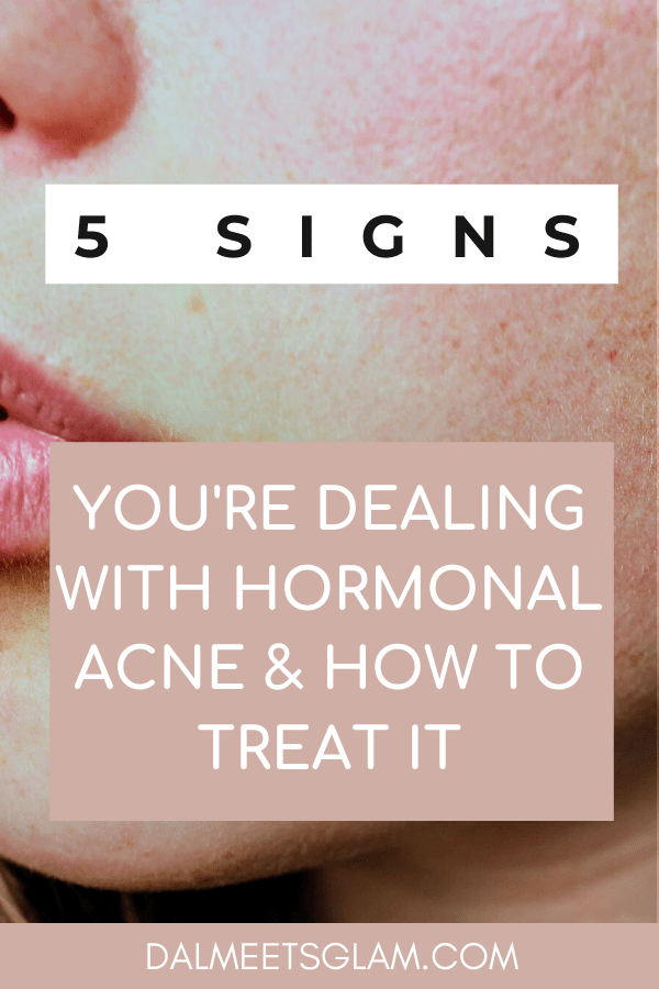 Hormonal Acne: 5 Signs You Are Dealing with It & How to Treat It