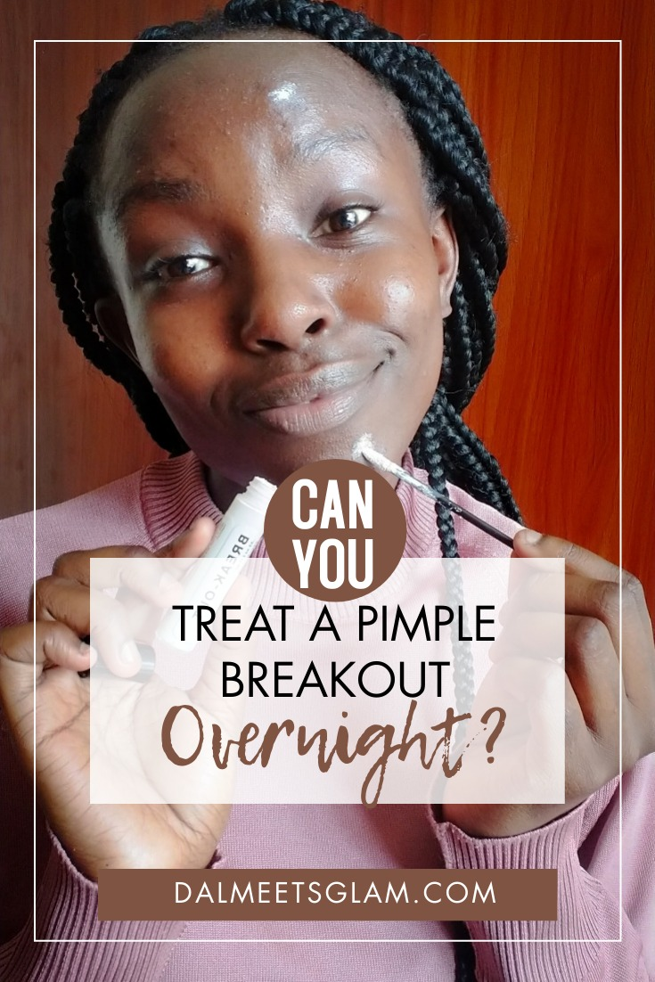 Can You Get Rid Of A Pimple Overnight? See My Results With ROSEN Skincare Break-Out Spot Treatment!