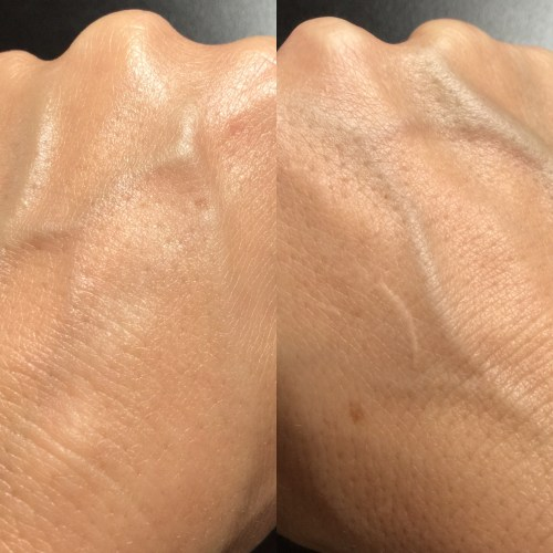 Hand on the left has been treated with NeoVadiol Serum, hand on right with nothing. Note the instant glow! More on this next post....