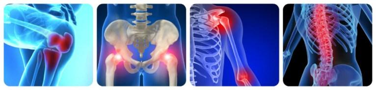 сутавы артрит
