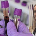 Hereditarni angioedem: Jedan uput za analizu krvi može da skrati godine čekanja na dijagnozu