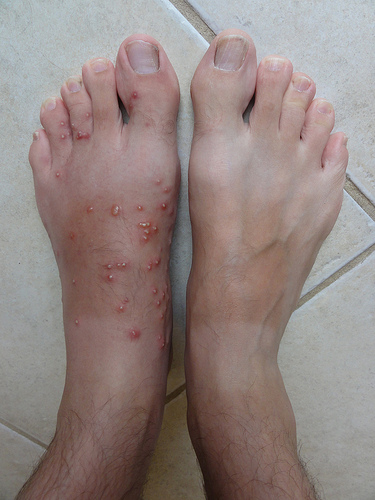 fire ant welts from the pest's stings