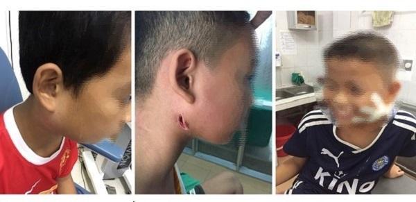 Khoἀng từ thάng 7 đến nay, Bệnh viện Sἀn Nhi Nghệ An đᾶ tiếp nhận và điều trị cho ba trường hợp dưσng tίnh với vi khuẩn ᾰn thịt người Whitmore.