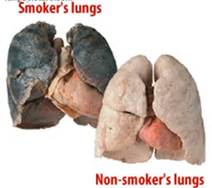 Clean Toxins Out of Your Lungs