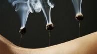 Moxibustion sur aiguille