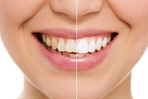 Free Photoshop Actions: Teeth Whitening