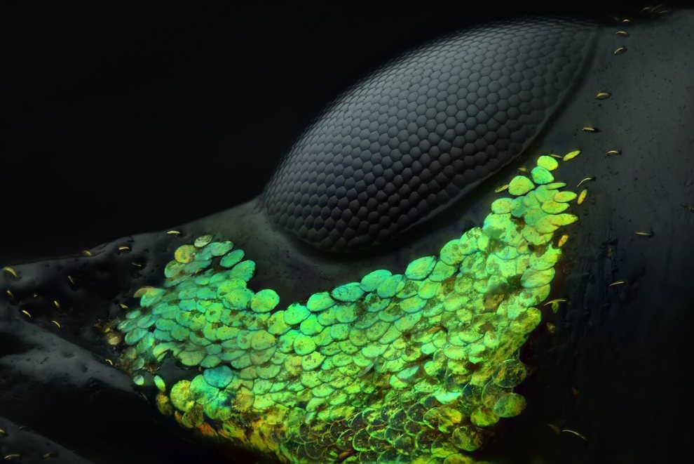 Top 10 winners of the Nikon Small World Photomicrography Competition: 1st Place, Yousef Al Habshi