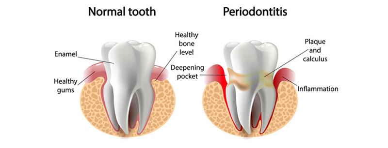 Tratamiento para enfermedad periodontal mejores pastas de dientes y consejos