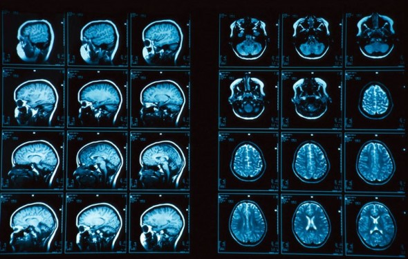 Death on an MRI scan – What our brains look like as we pass away