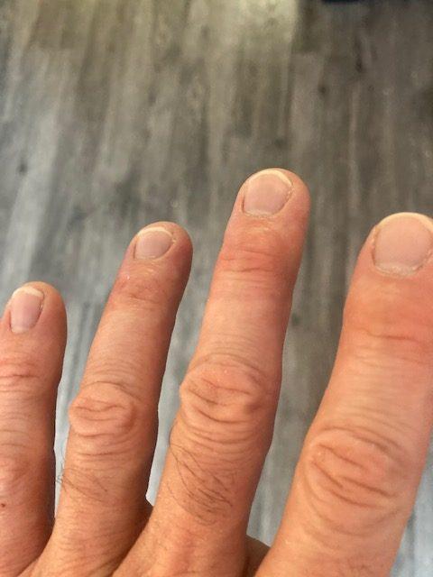 dry fingernails collagen