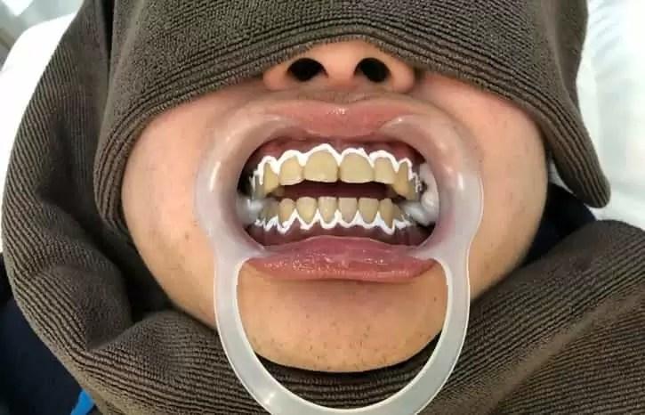 スターホワイトニング_歯茎_保護クリーム