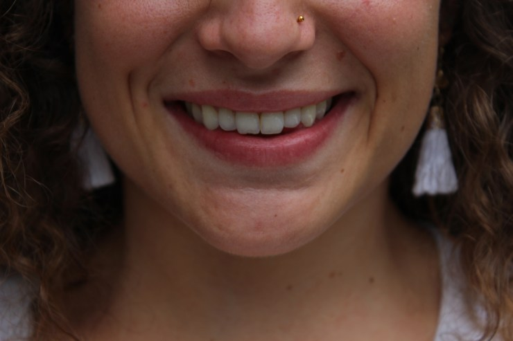 how to have whitened teeth from an at-home system