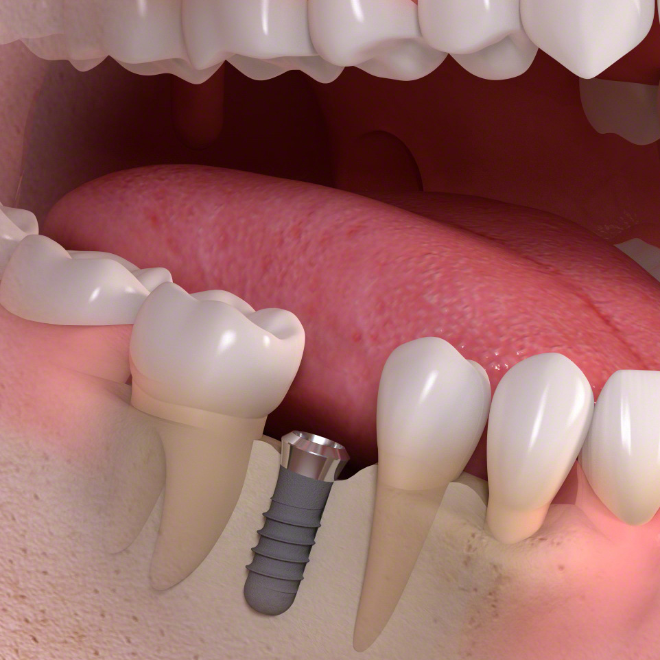 Implant-supported_single-tooth_treatment_02