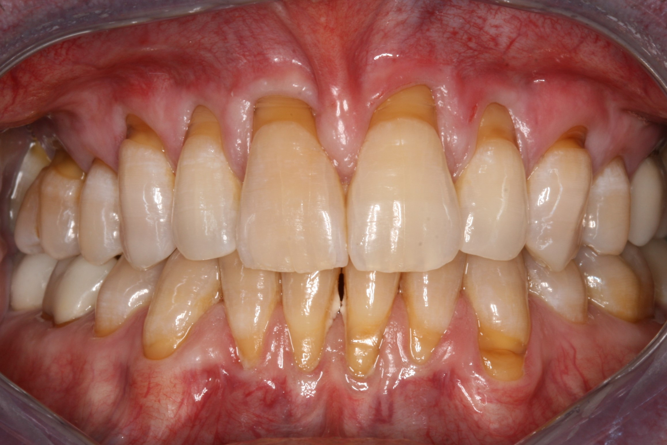 Gingival Grafting Results