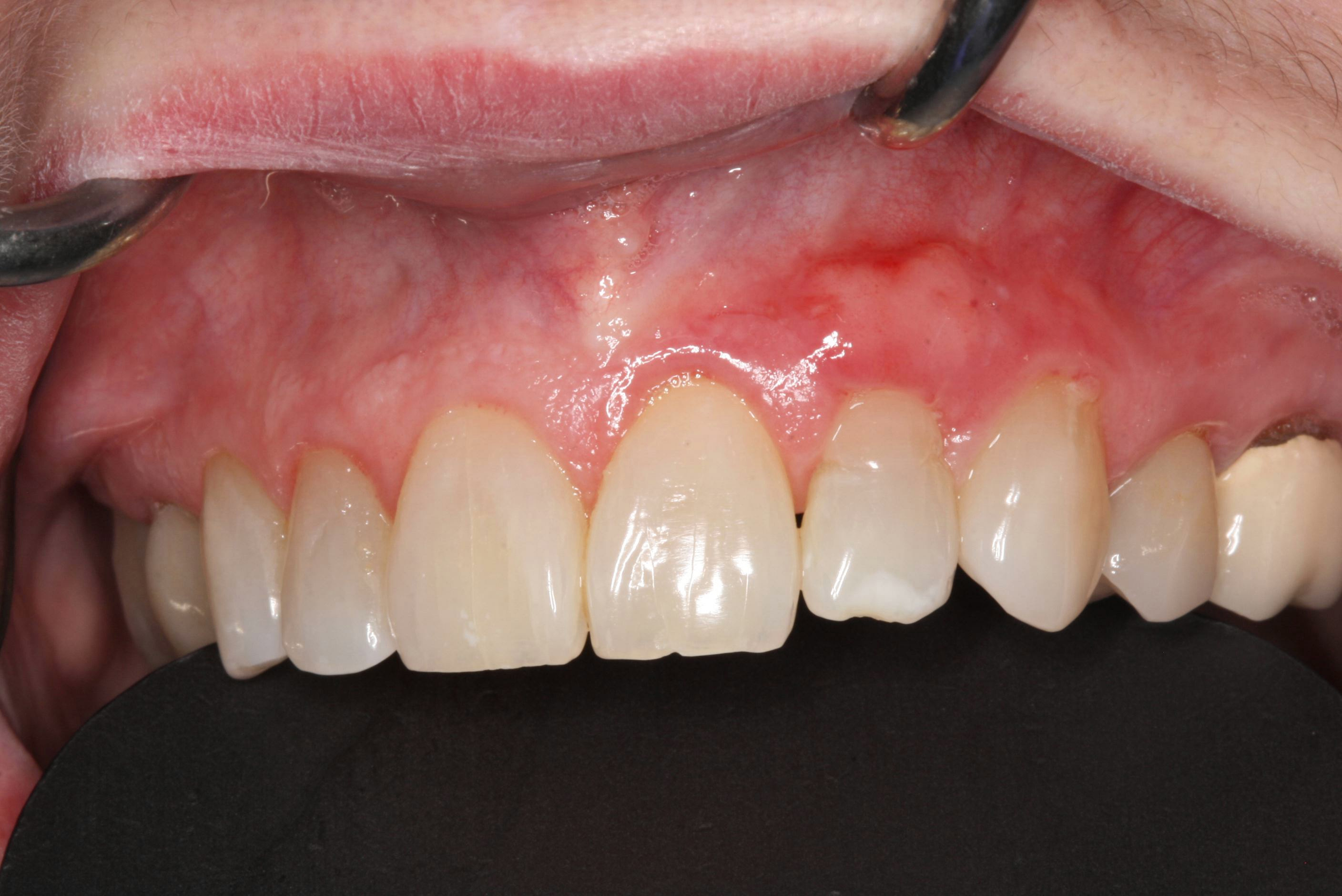 After Gingival Grafting