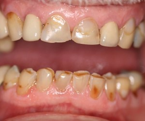 Teeth Before Cosmetic Fillings