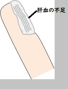 爪の状態を示す絵
