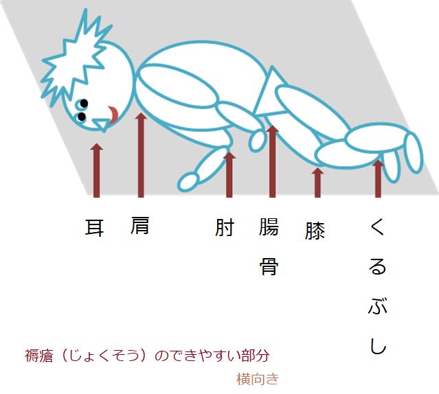 褥瘡のできやすい部分(側臥位)