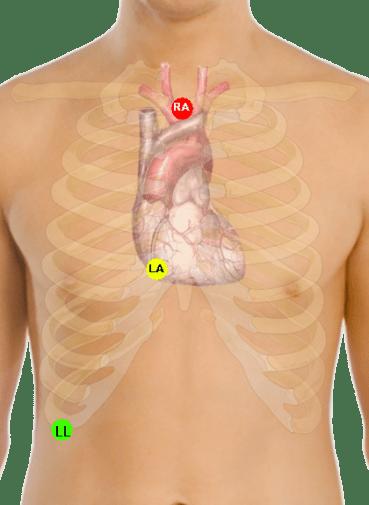 Lewis_lead_placement_EKG