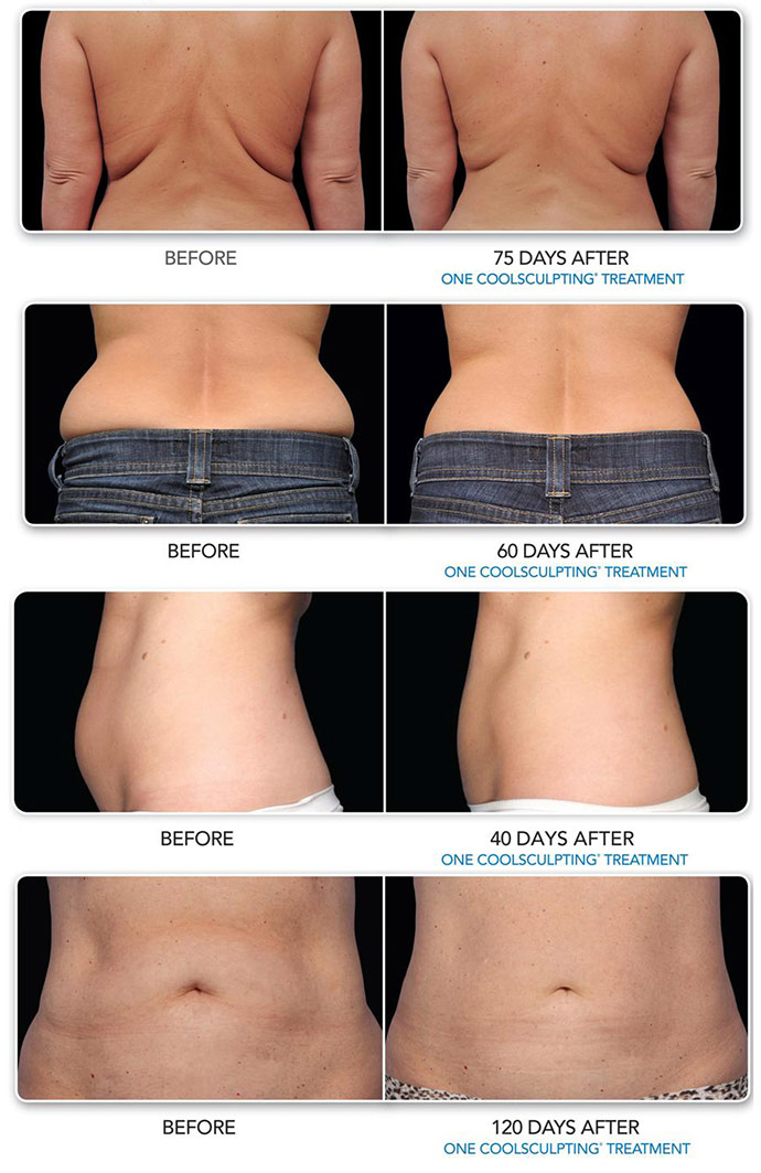 Coolsculpting: Experience the Latest Technique in Body ...