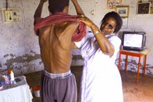 Un malato di Aids in Africa