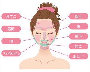 梅田で医療レーザー顔脱毛♡おすすめランキング~安い回数で効果あるの!?