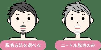 ヒゲ脱毛方法可否の比較