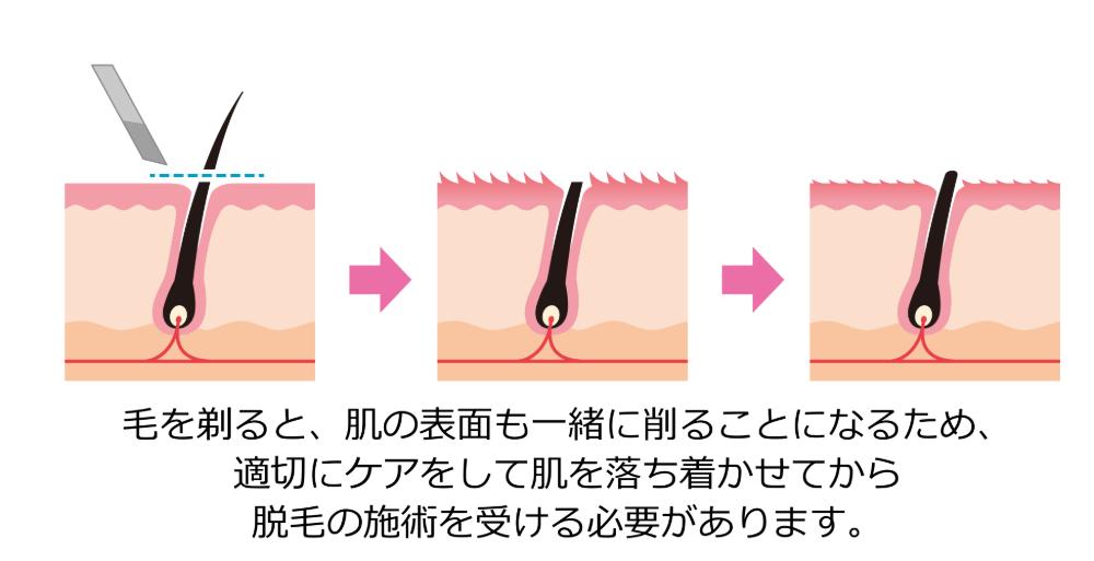 剃り終わった直後の肌の表面は、保護するものが無く、細かく毛羽立った状態になっていて、様々な刺激に敏感になっています
