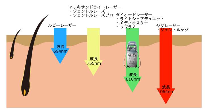 医療脱毛レーザーの波長比較(ライトシェアデュエット)