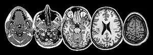 An MRI of the Brain
