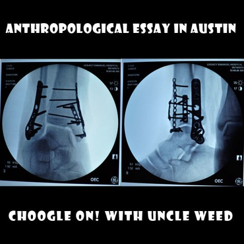 Anthropological Essay in Austin – Choogle On! #101