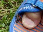 Cranbury Frog