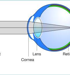 eye diagram perfect focus eye diagram perfect focus [ 1683 x 1258 Pixel ]