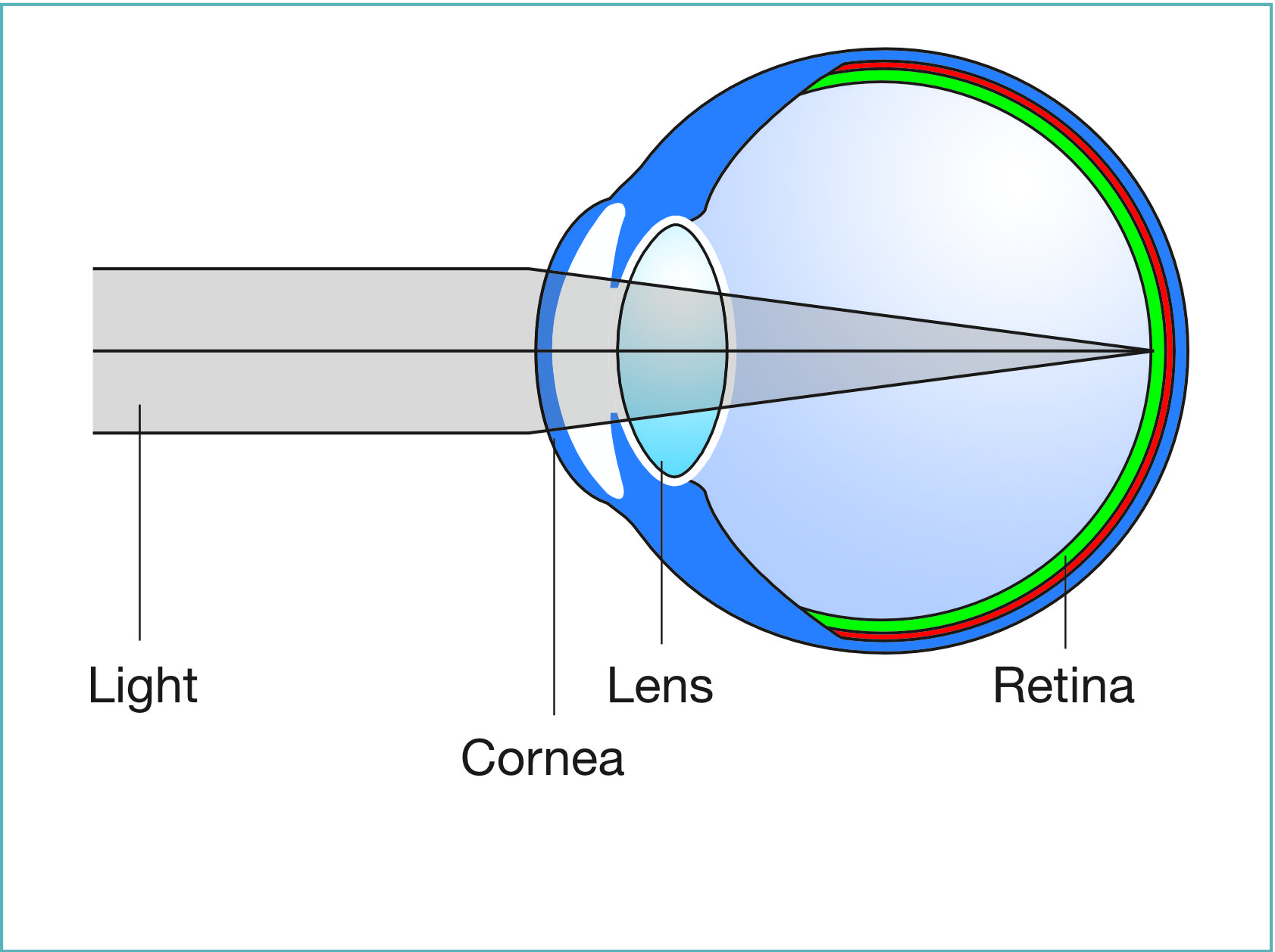 diagram of artificial eye leeson 5hp motor wiring safest refractive lens exchange london uk top surgeon