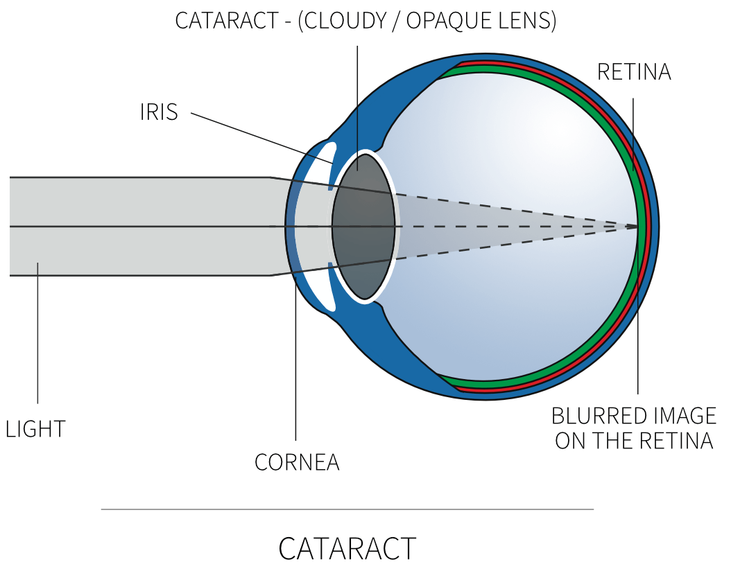 long and short sighted diagram bt 50 wiring cataracts david gartry