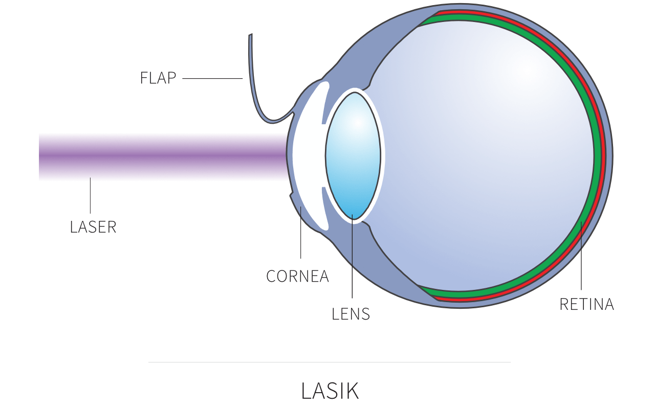 long and short sighted diagram house electrical wiring diagrams lasik laser eye surgery in london david gartry