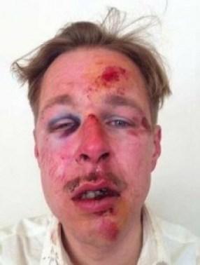 Wilfred de Brujin après son agression en avril 2013.