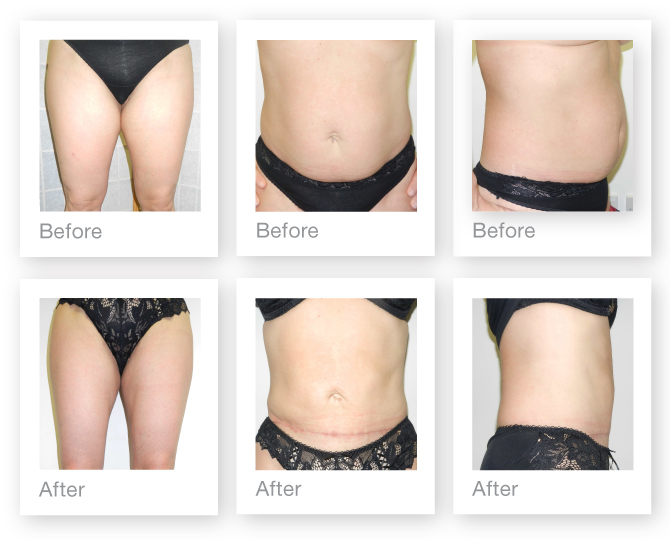 David Oliver, Plastic Surgeon mini abdominoplasty & liposuction before and after surgery results