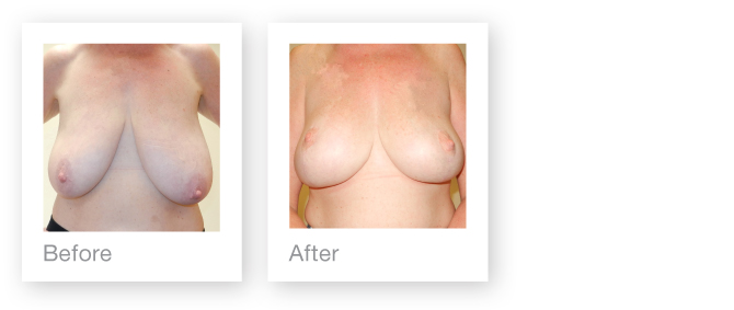Breast reduction & mastopexy before and after surgery by David Oliver, Plastic Surgeon, Devon