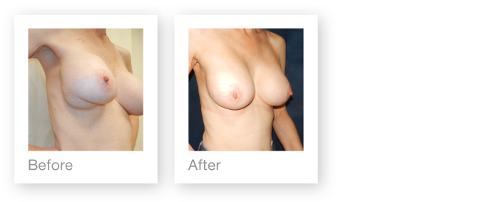 Breast Revisional Surgery of implants by David Oliver Cosmetic Surgeon in Devon