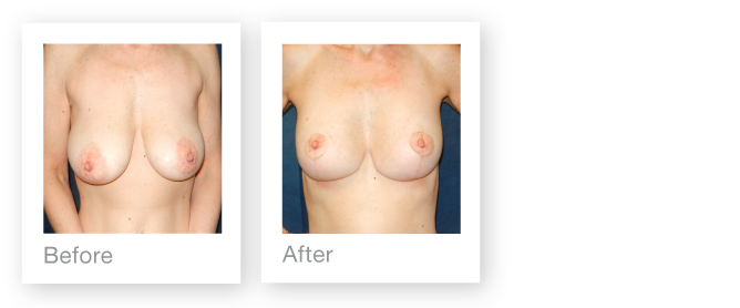 David Oliver Surgeon Breast Reduction Surgery Results before & after July 2014