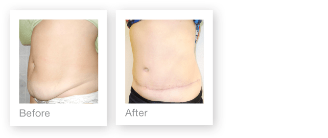 David Oliver Surgeon Abdominoplasty before & after surgery result