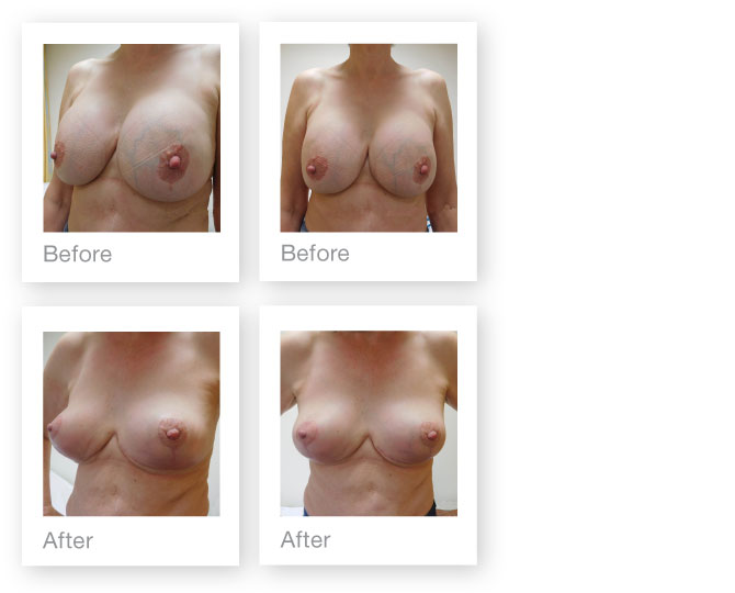 David Oliver breast surgery implant removal July 2016 before & after results
