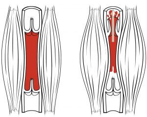 Muscles restrict blood flow - dr. Sarno Back Pain Method