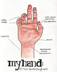 tendinitis in hand - photo - inflammation - tendinitis in chronic pain relief