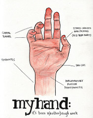 hand with tendinitis photo - tendonitis rsi